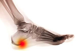Diagnosing Heel Spurs